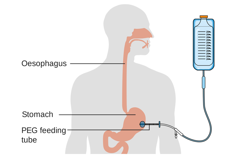 Percutaneous endoscopic gastrostomy (PEG)